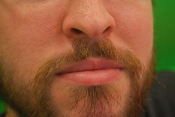 man039s face