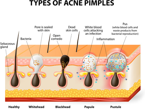 Skin Structure Diagram Vectors Free Vector In Encapsulated