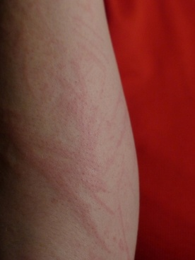 arm upper arm redness