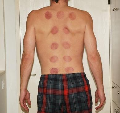 ba guan treatment results