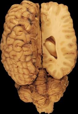 brain anatomy eyes