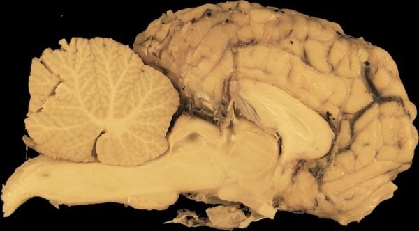 brain horse section