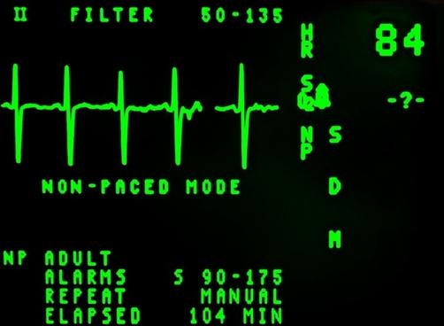 electrocardiogram beat cardiology