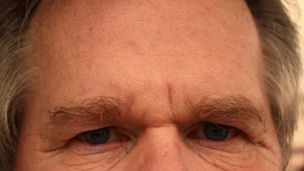 forehead eyes face