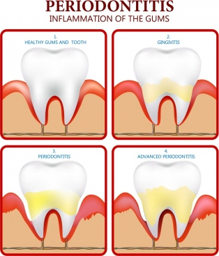 periodontics poster flat colored design tooth icons