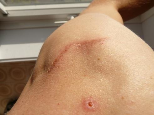 scar wound arm