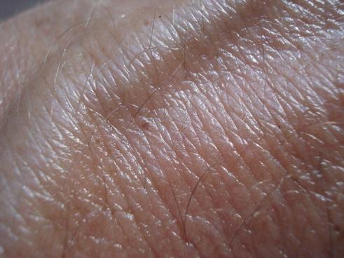 skin vein brown